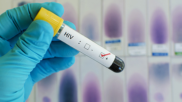 IN NUMBERS: Global HIV/AIDS cases still on the rise